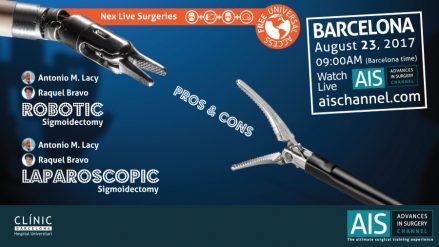Cirugía Róbotica VS. Laparoscópica en el cáncer de colon en AIS Channel