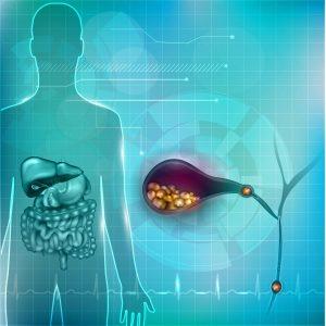 Cálculos o Piedras en las vesícula biliar