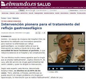 2008-03-19. El Mundo. Intervención pionera para el tratamiento del reflujo gastroesofágico