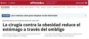 2009-10-25. El Periodico. Cirugía contra la obesidad extrayendo el estómago por el ombligo