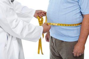 Obesidad mórbida. Cirugía bariátrica