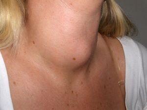 bocio tiroideo
