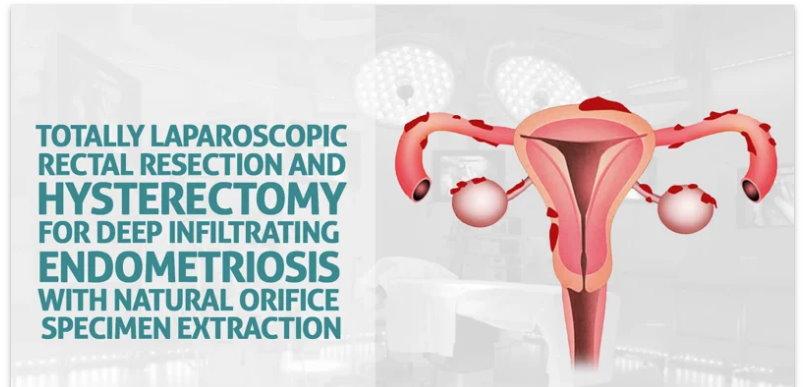Resección rectal totalmente laparoscópica e histerectomía para endometriosis infiltrante profunda
